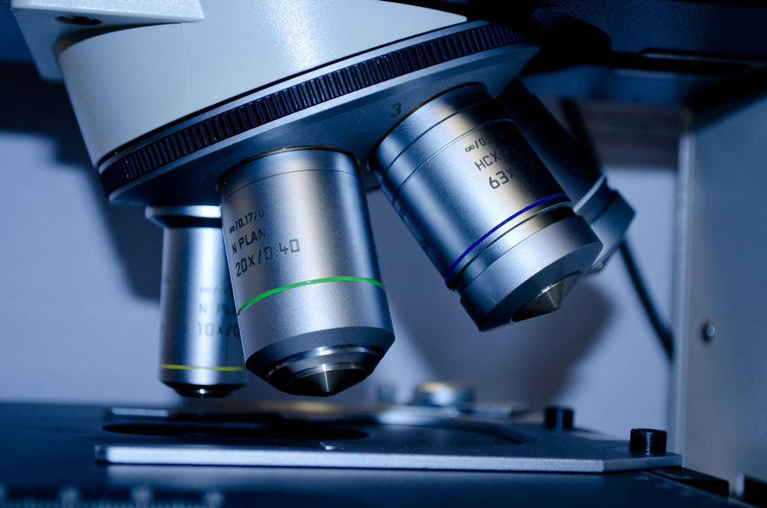 Endometriosi: La Diagnosi Da Un Semplice Prelievo Di Sangue